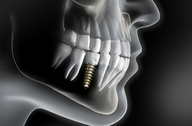 Illustration of dental implant in patient's lower jaw