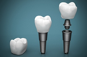 Animation of the implant tooth replacement process