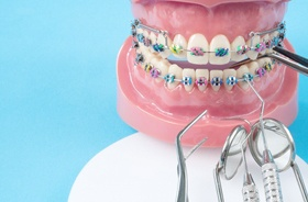braces model and dental instruments
