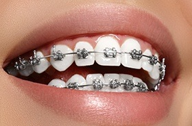 Closeup of teeth with metal braces