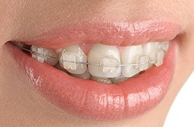 Closeup of teeth with ceramic braces