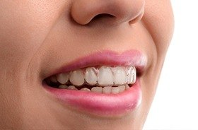 Closeup of smile with Invisalign